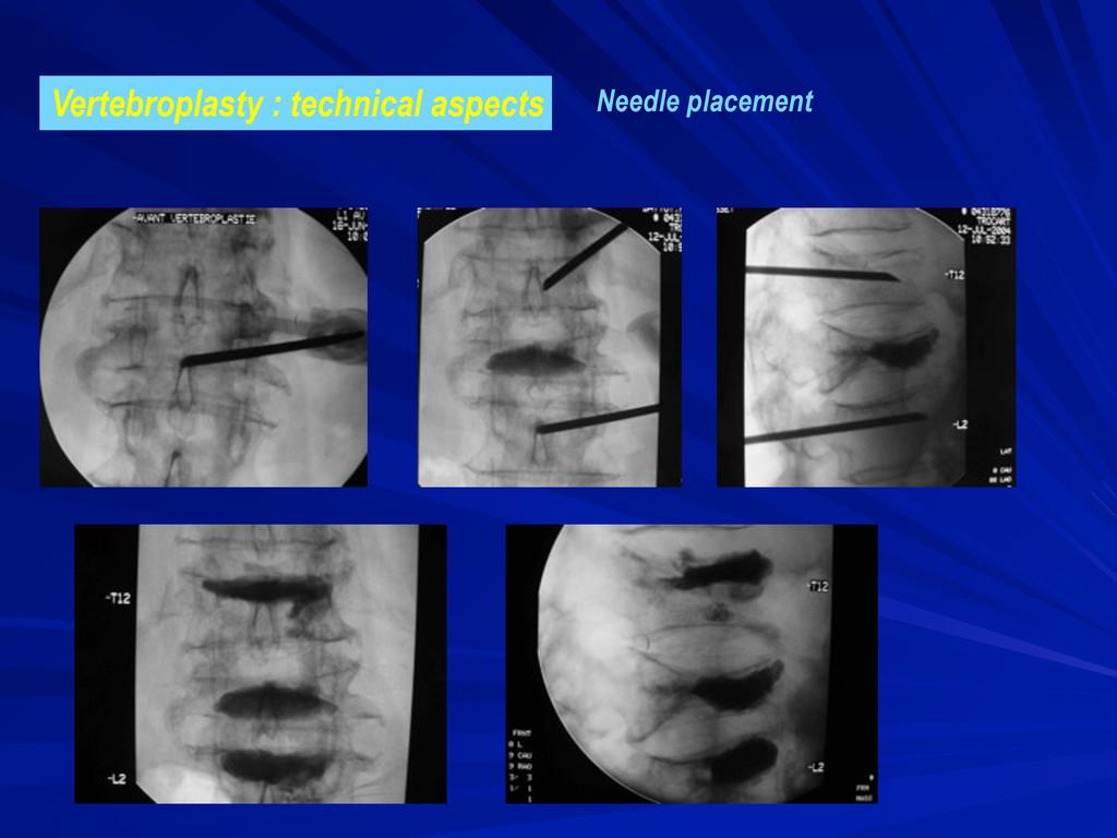 Vertebroplasty : technical aspects Needle place...