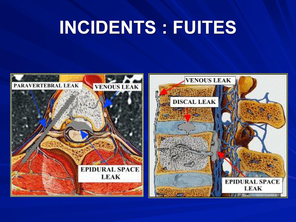 INCIDENTS : FUITES