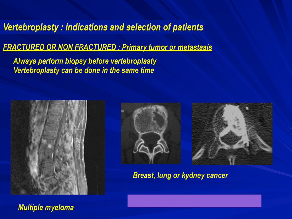 FRACTURED OR NON FRACTURED : Primary tumor or m...