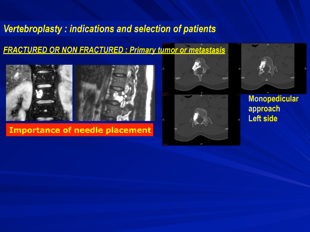 Importance of needle placement Monopedicular ap...