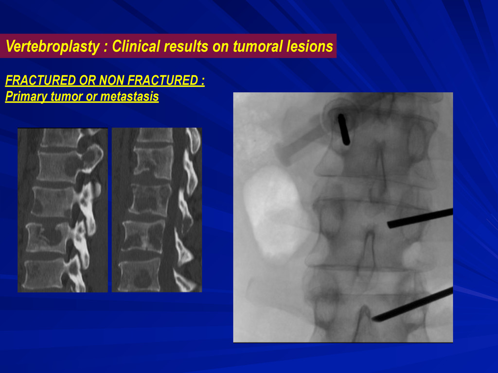 Vertebroplasty : Clinical results on tumoral le...