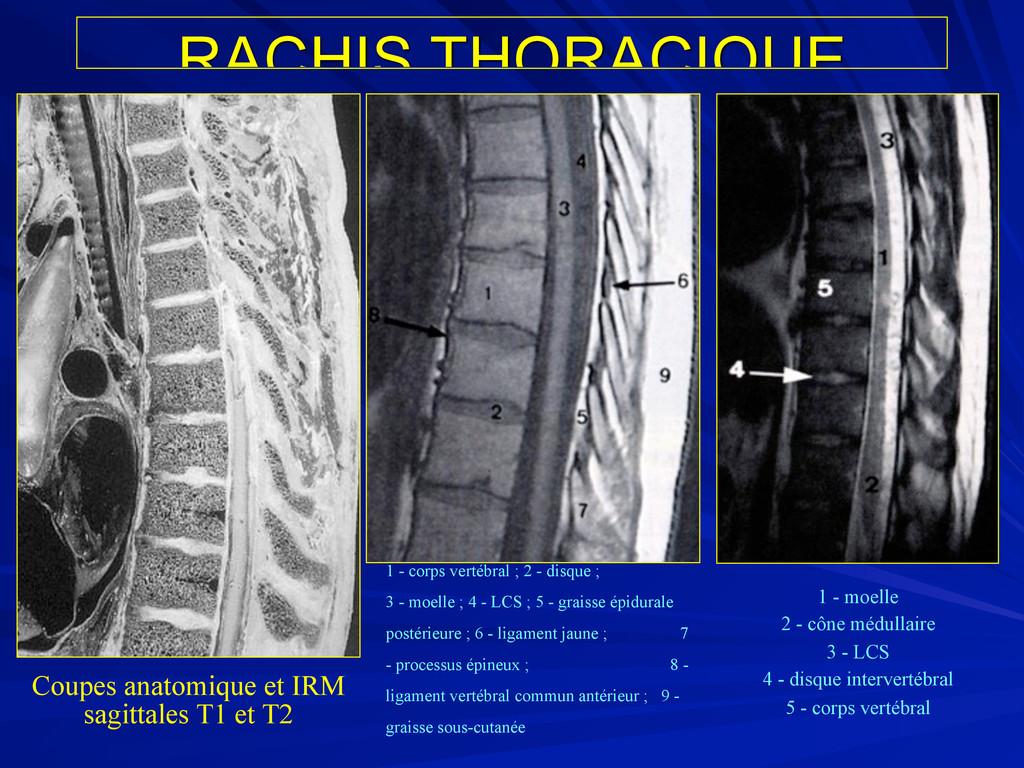 RACHIS THORACIQUE 1 - corps vertébral ; 2 - dis...