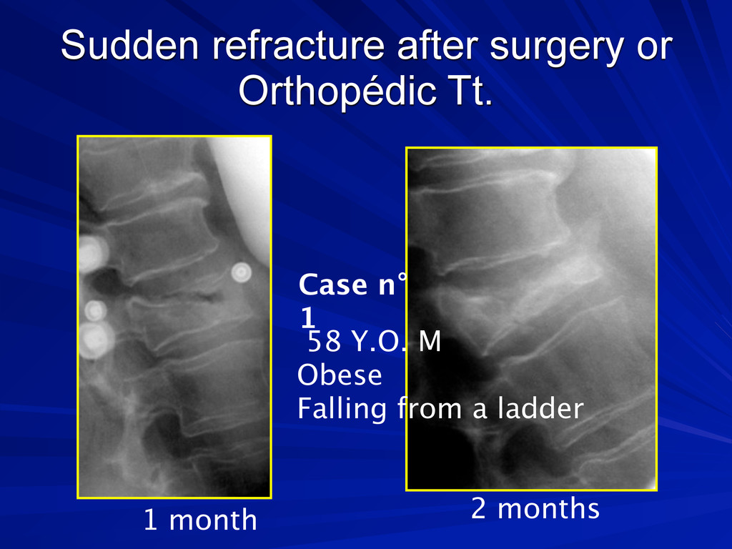 Sudden refracture after surgery or Orthopédic T...