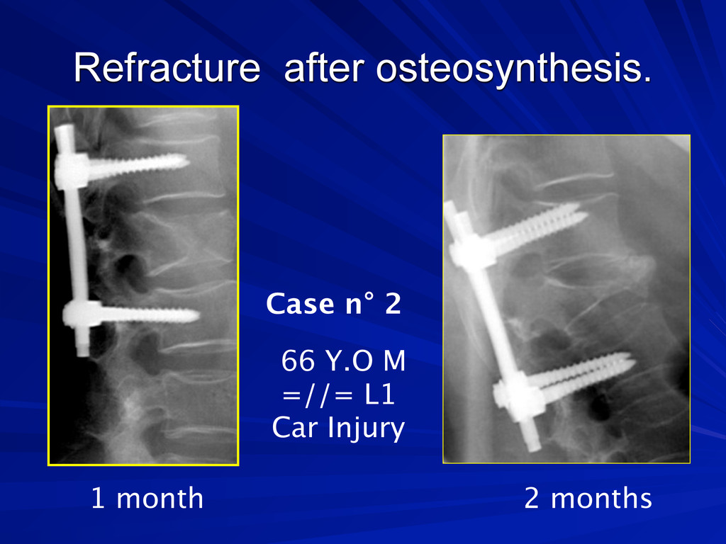 Refracture after osteosynthesis. Case n° 2 1 mo...