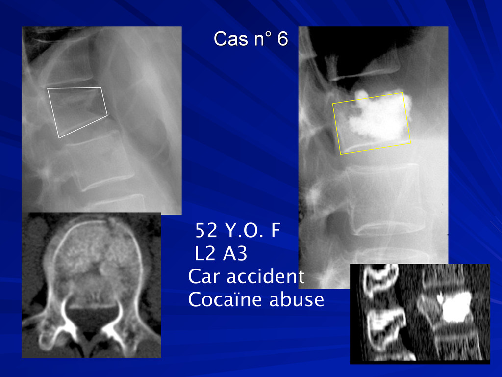 Cas n° 6 52 Y.O. F L2 A3 Car accident Cocaïne a...