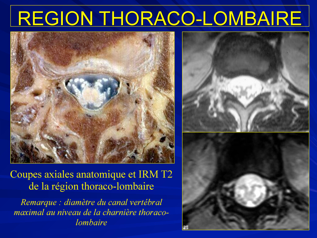 REGION THORACO-LOMBAIRE Coupes axiales anatomiq...