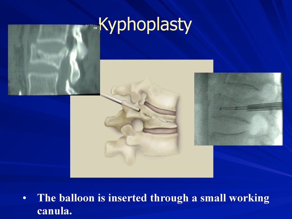 Kyphoplasty • The balloon is inserted through a...