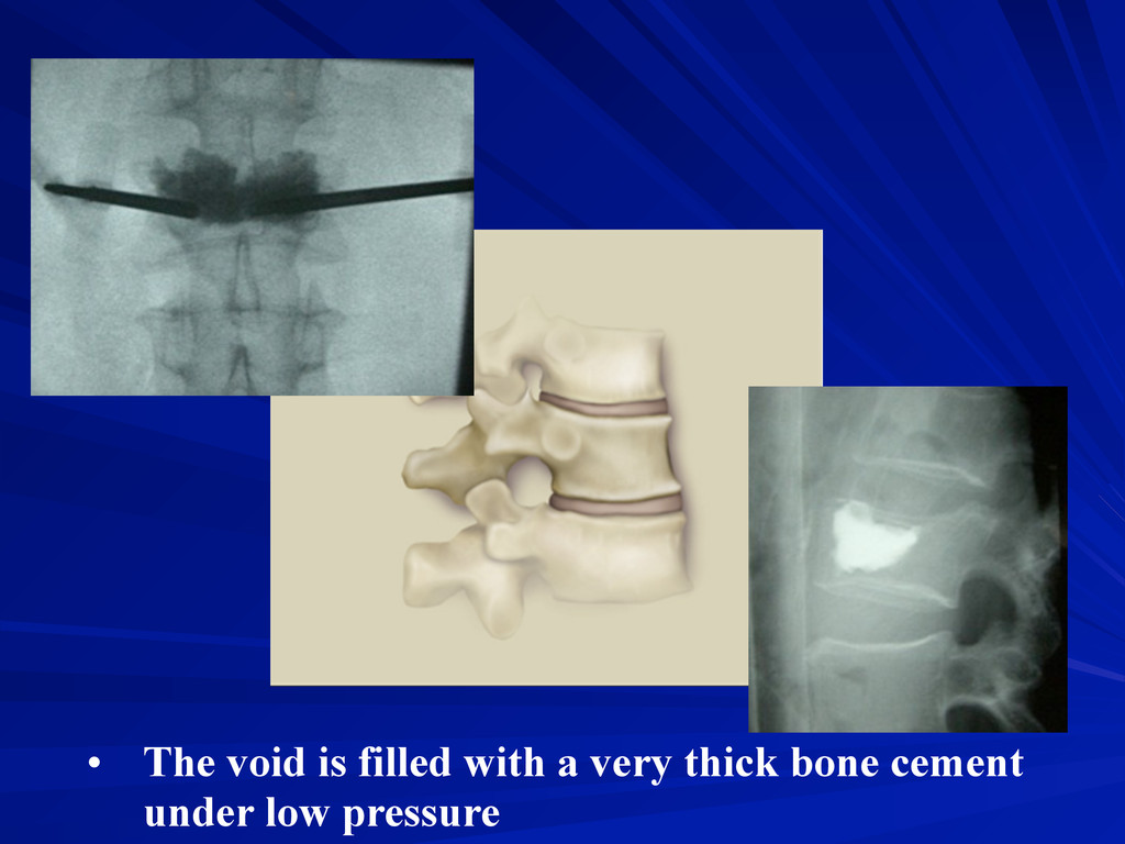 • The void is filled with a very thick bone cem...