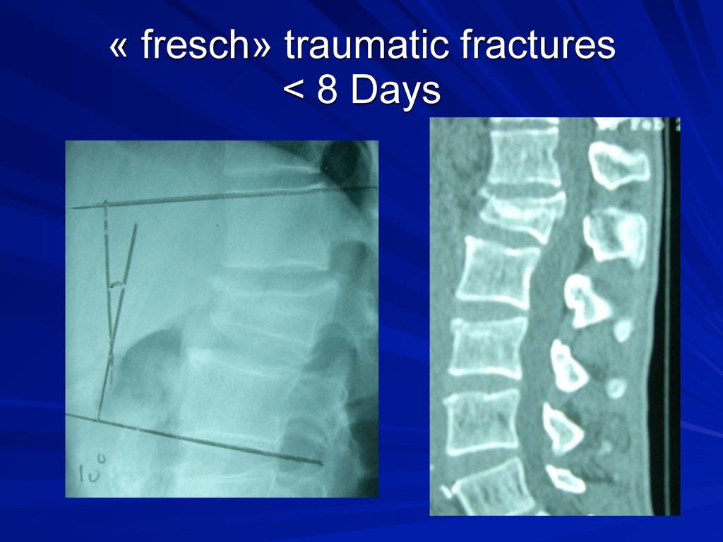 « fresch» traumatic fractures < 8 Days