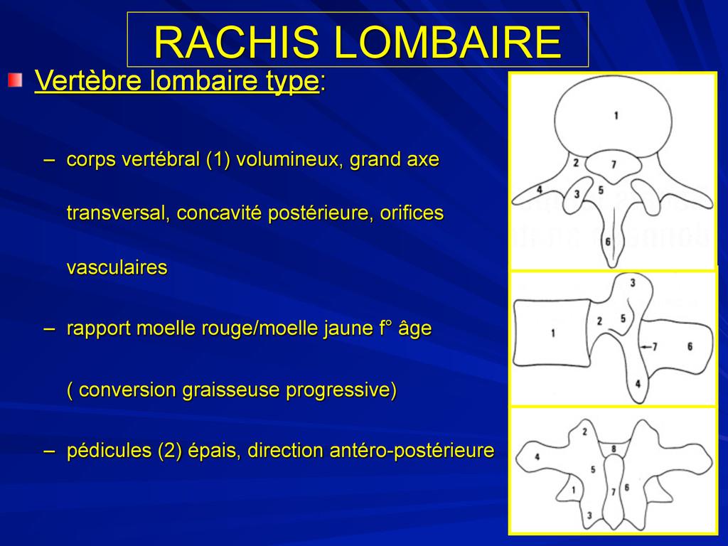 RACHIS LOMBAIRE Vertèbre lombaire type: – corps...