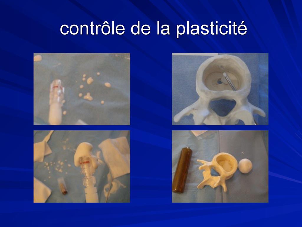 contrôle de la plasticité