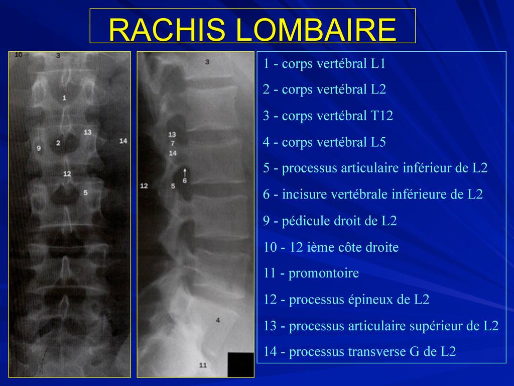 RACHIS LOMBAIRE 1 - corps vertébral L1 2 - corp...