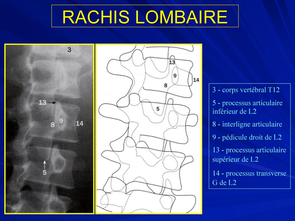 RACHIS LOMBAIRE 3 - corps vertébral T12 5 - pro...