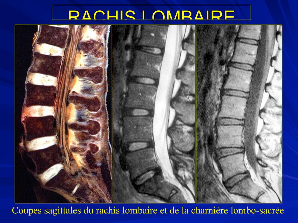 RACHIS LOMBAIRE Coupes sagittales du rachis lom...