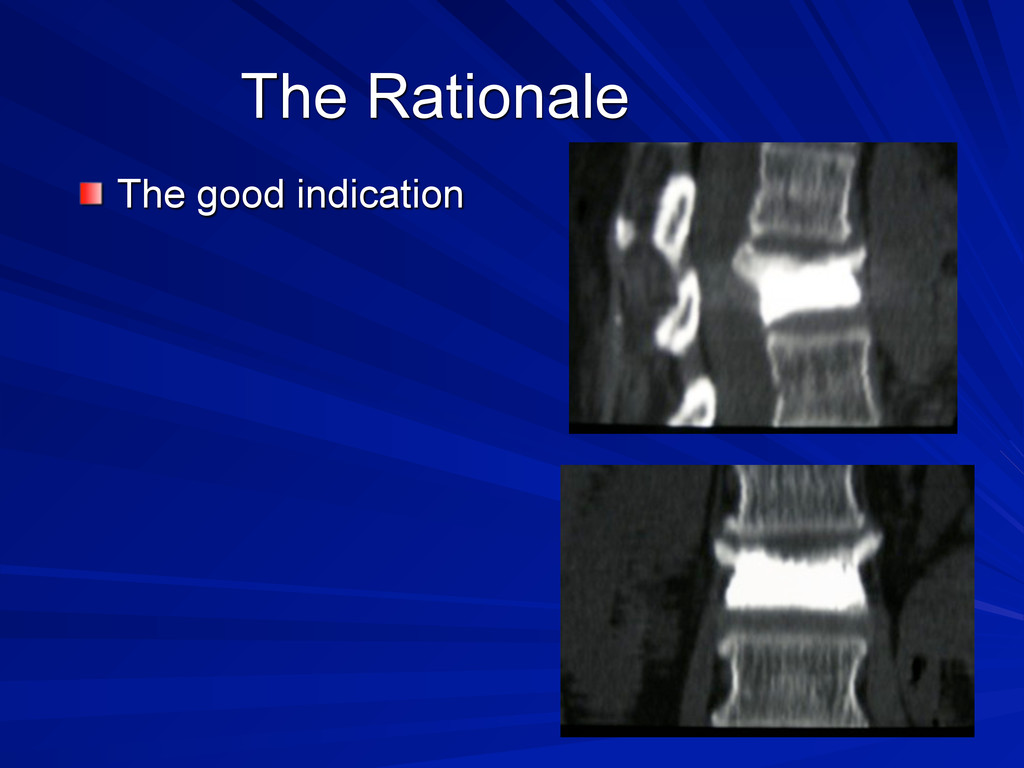 The Rationale The good indication