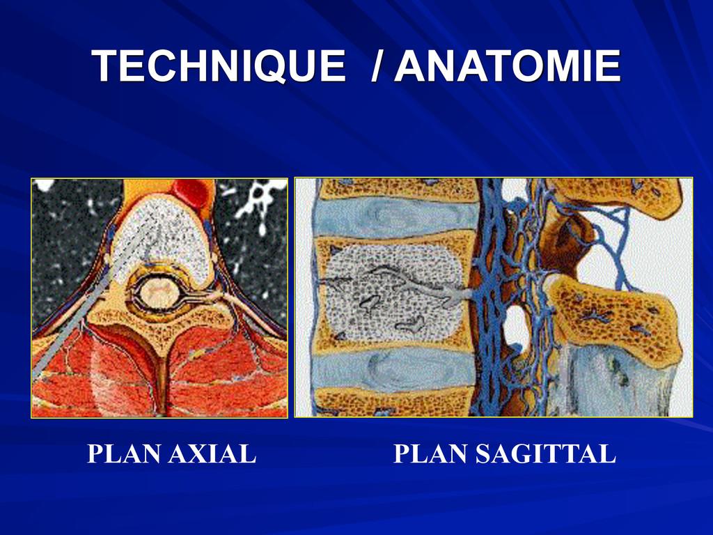 TECHNIQUE / ANATOMIE PLAN AXIAL PLAN SAGITTAL