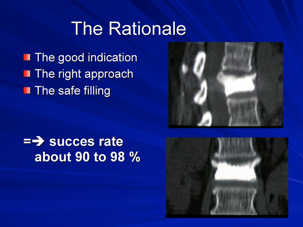 The Rationale The good indication The right app...