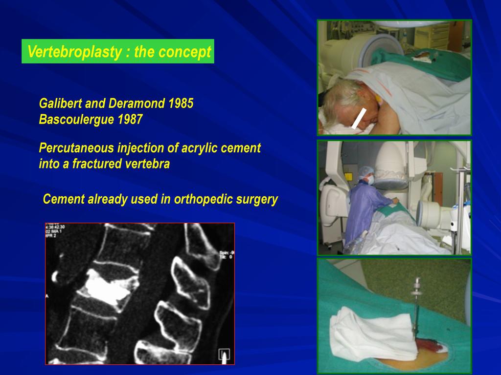 Vertebroplasty : the concept Galibert and Deram...