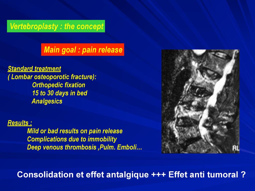 Vertebroplasty : the concept Main goal : pain r...