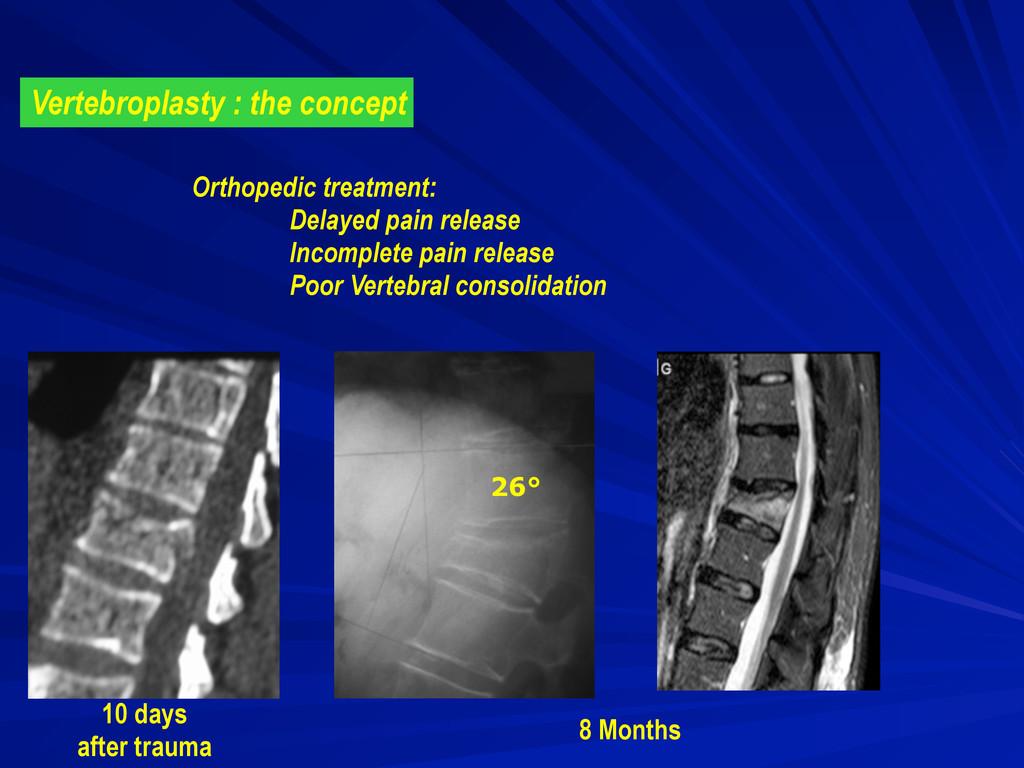 Vertebroplasty : the concept 8 Months 10 days a...