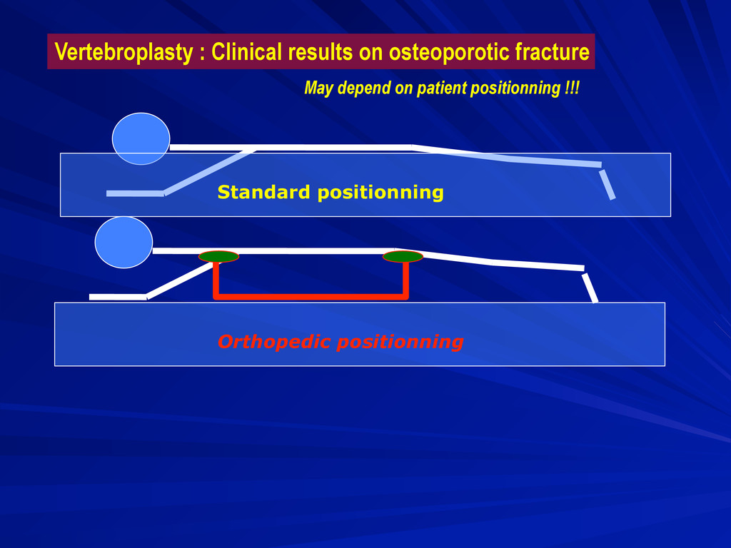 Vertebroplasty : Clinical results on osteoporot...