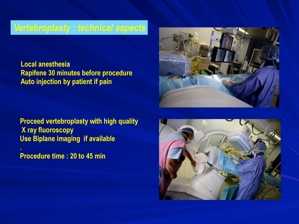 Vertebroplasty : technical aspects Local anesth...