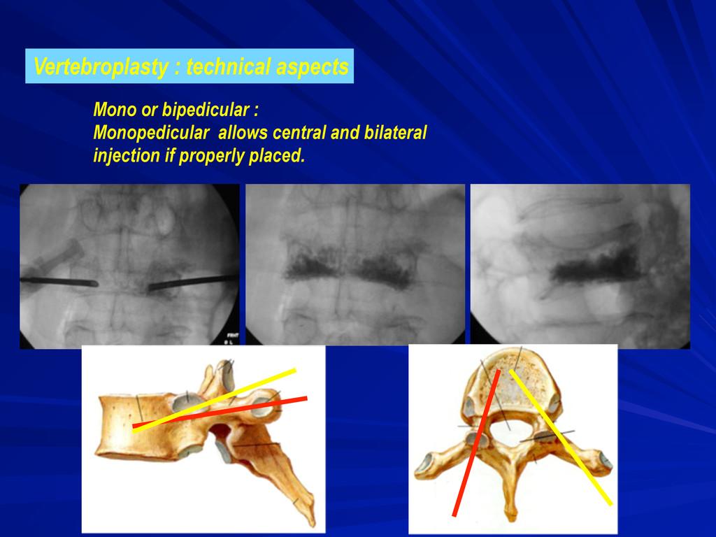 Mono or bipedicular : Monopedicular allows cent...