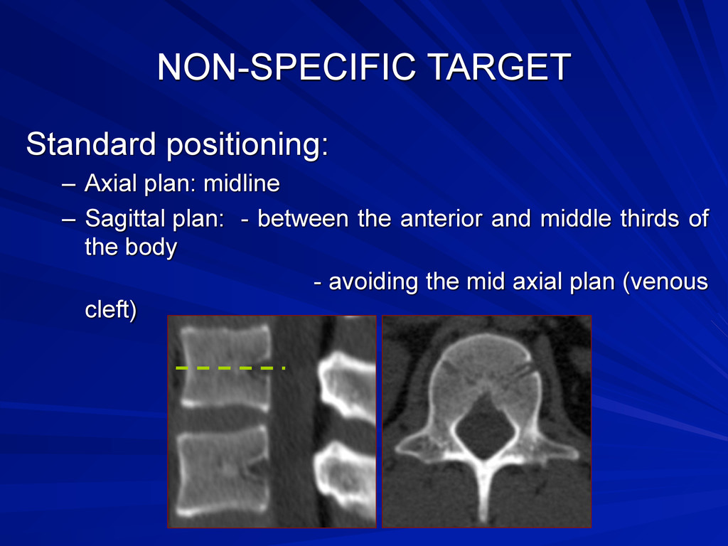 NON-SPECIFIC TARGET Standard positioning: – Axi...
