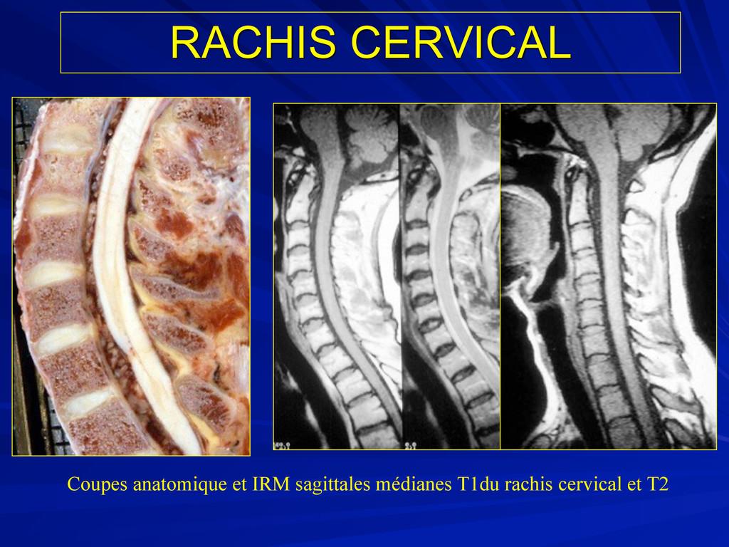 RACHIS CERVICAL Coupes anatomique et IRM sagitt...