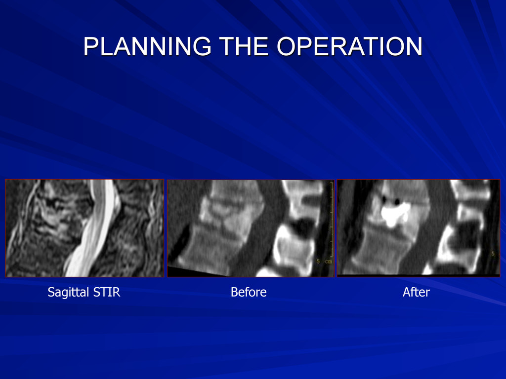 PLANNING THE OPERATION Sagittal STIR Before Aft...