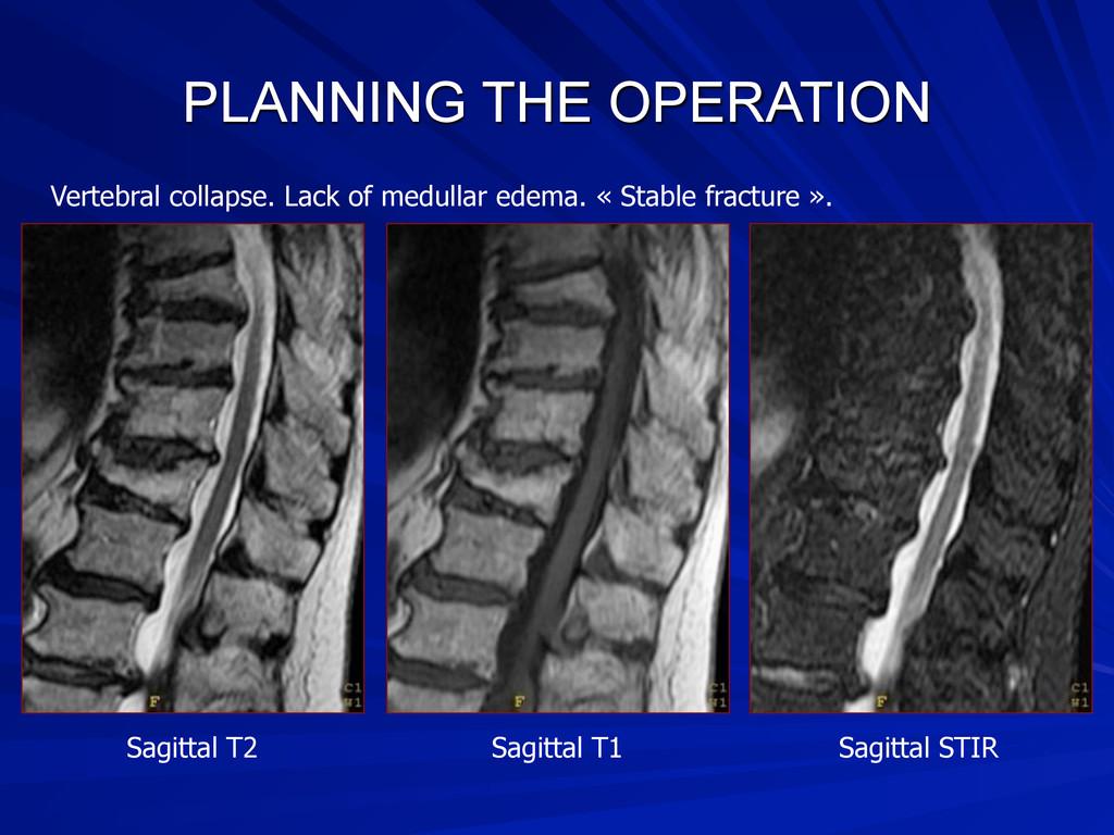 PLANNING THE OPERATION Sagittal T2 Sagittal T1 ...