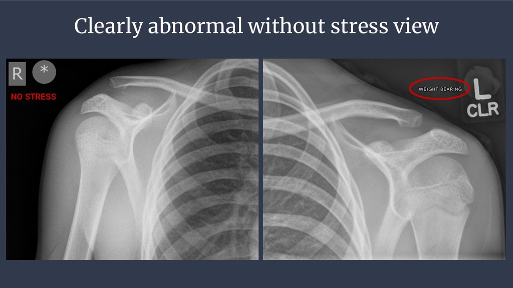 Clearly abnormal without stress view NO STRESS