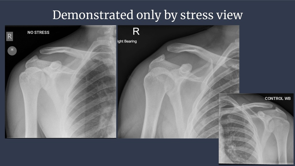Demonstrated only by stress view CONTROL WB NO ...