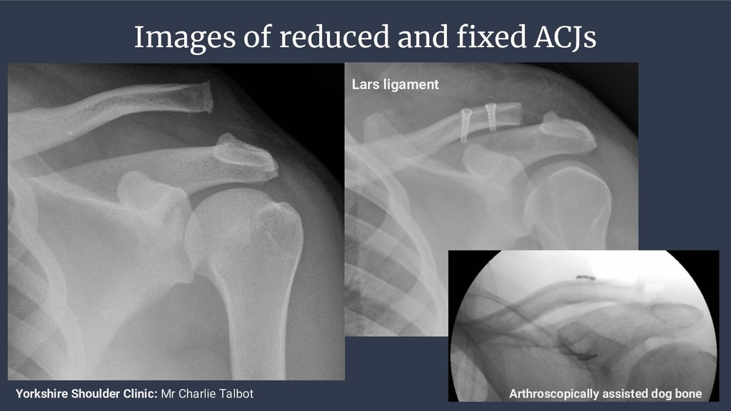 Images of reduced and fixed ACJs Lars ligament ...