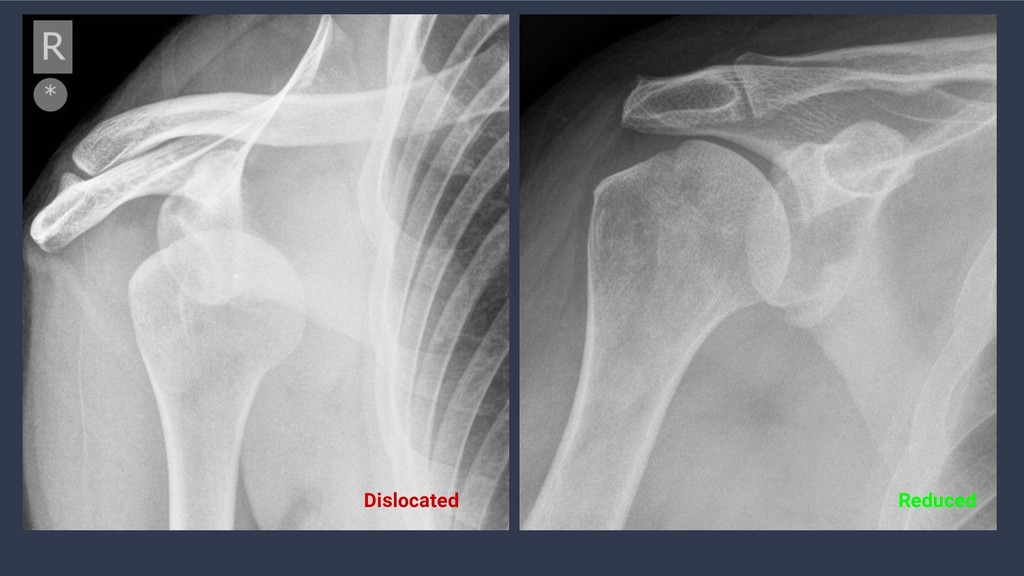 Dislocated Reduced