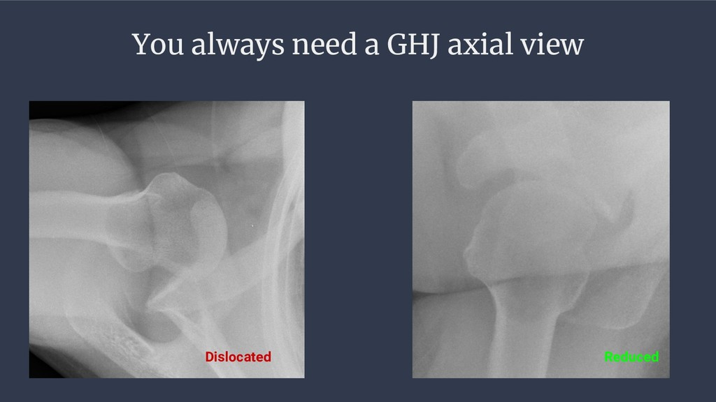 You always need a GHJ axial view Dislocated Red...