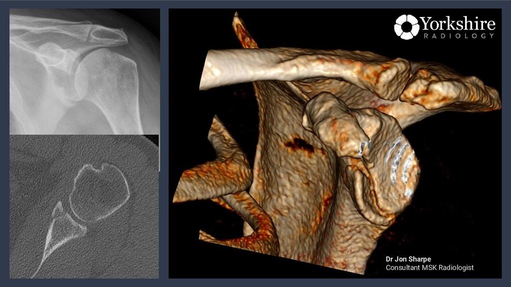 Dr Jon Sharpe Consultant MSK Radiologist