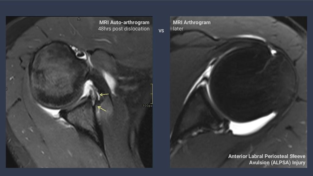 MRI Auto-arthrogram 48hrs post dislocation MRI ...