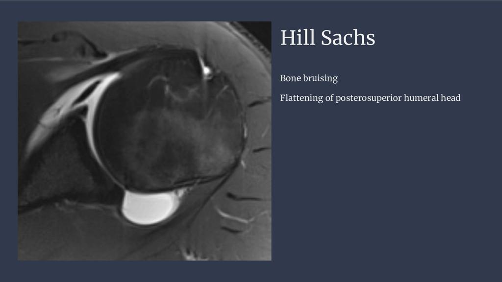 Hill Sachs Bone bruising Flattening of posteros...