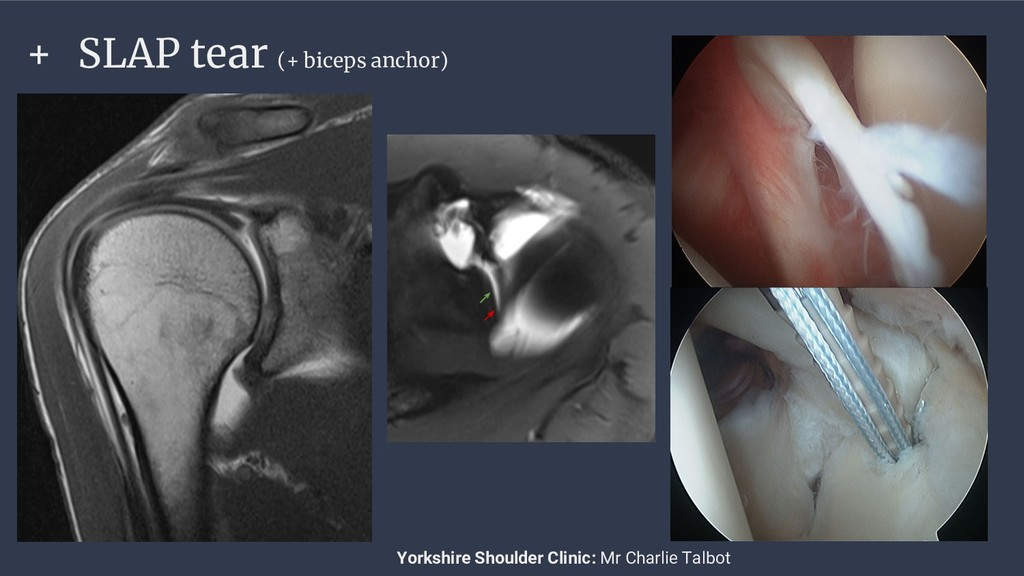 + SLAP tear (+ biceps anchor) Yorkshire Shoulde...