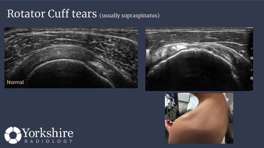 Rotator Cuff tears (usually supraspinatus) Norm...