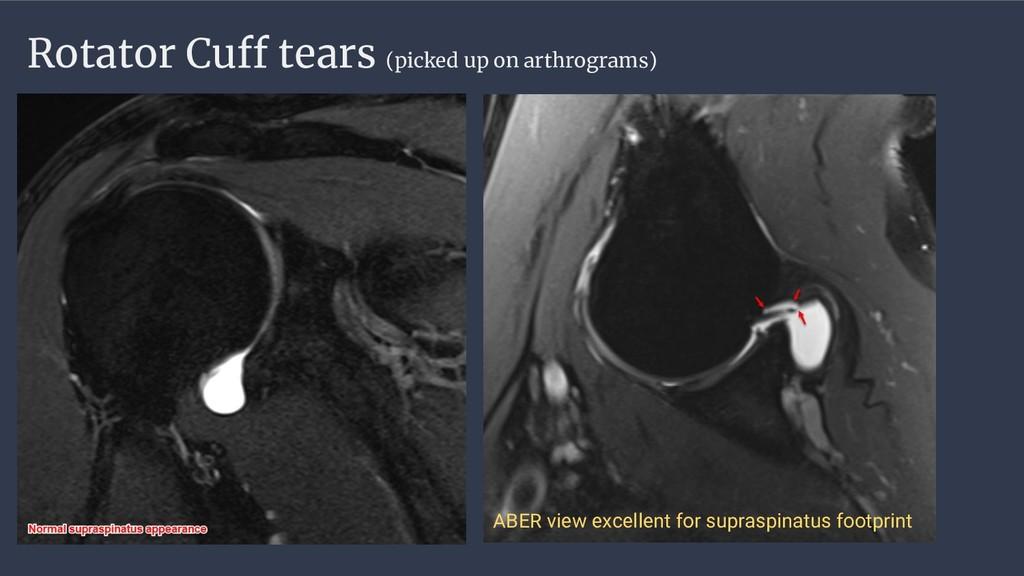 Rotator Cuff tears (picked up on arthrograms) A...