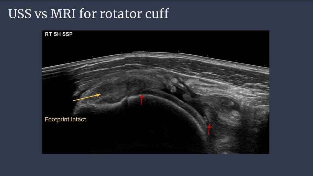 USS vs MRI for rotator cuff Footprint intact