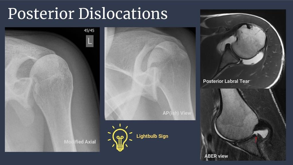Posterior Dislocations Modified Axial AP(ish) V...