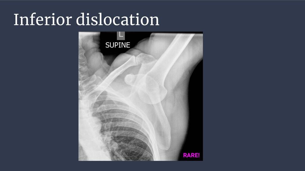 Inferior dislocation RARE!