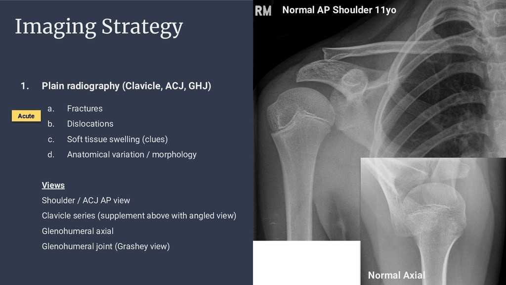 Imaging Strategy 1. Plain radiography (Clavicle...