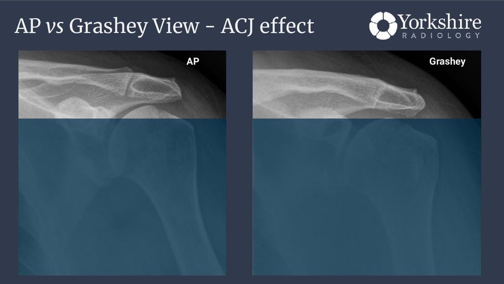 AP vs Grashey View - ACJ effect Grashey AP