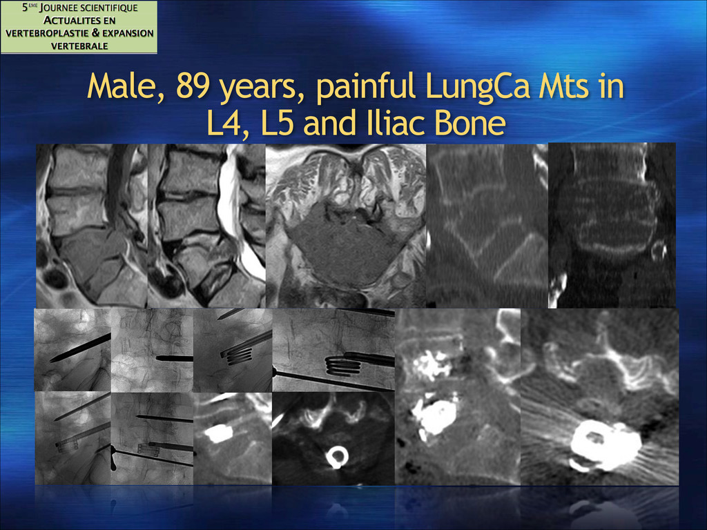 Male, 89 years, painful LungCa Mts in L4, L5 an...