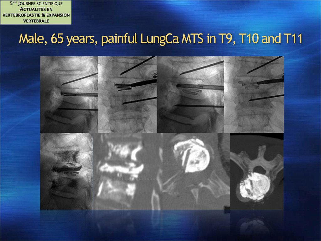 Male, 65 years, painful LungCa MTS in T9, T10 a...
