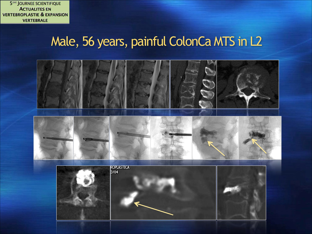 Male, 56 years, painful ColonCa MTS in L2